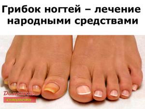 Грибок ногтей – лечение народными средствами
