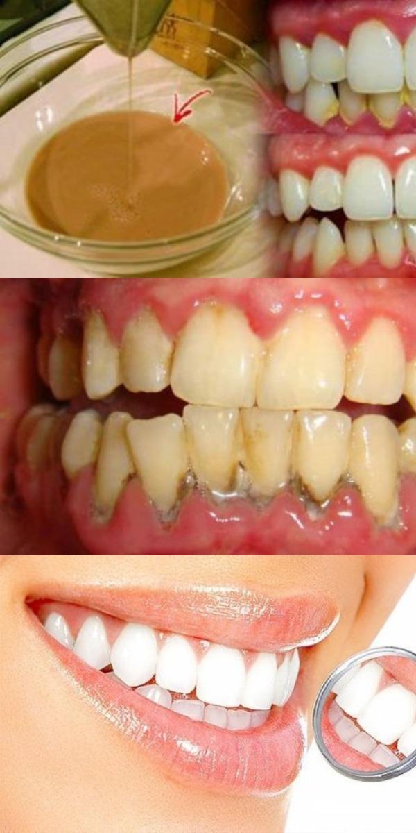 Эффективная домашняя жидкость для полоскания рта, которая удаляет зубной налет всего за 2 минуты