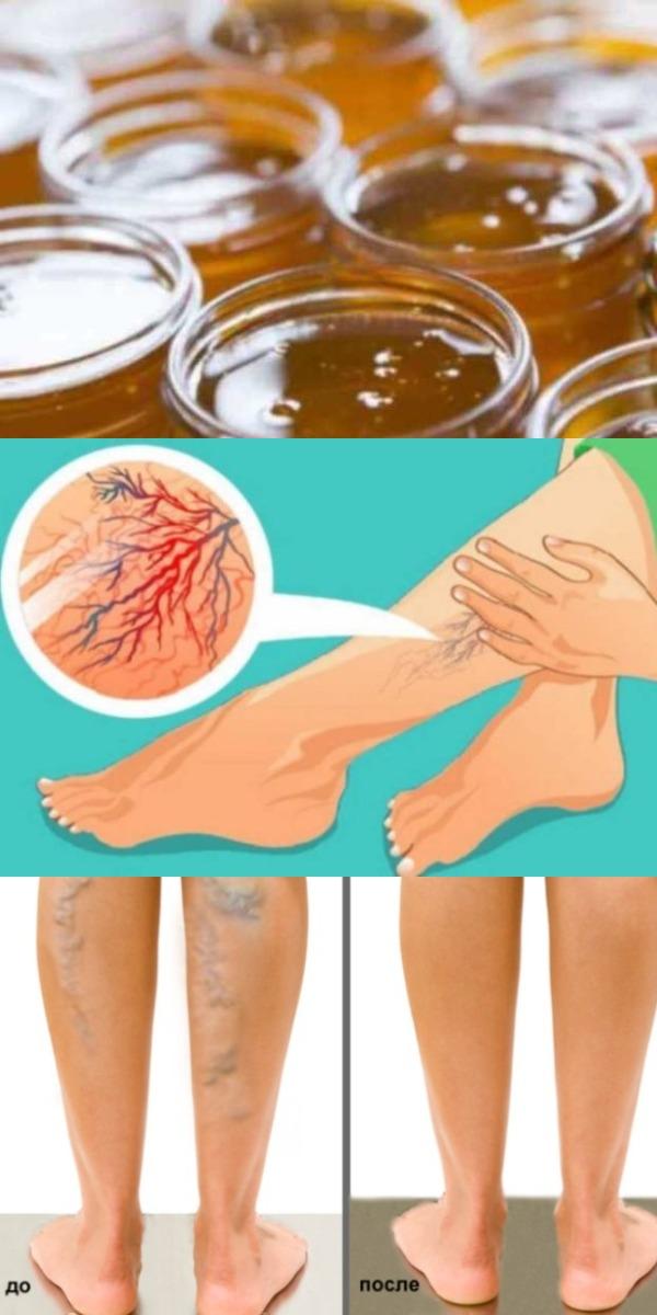 Мед вылечил варикоз и трофические язвы на ногах главное, знать как применять