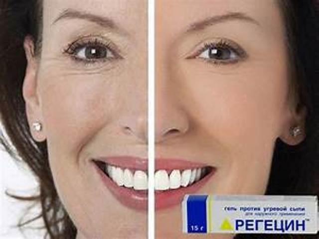 СЕНСАЦИЯ! Регецин – лучшее средство от мимических морщин и мешков под глазами!