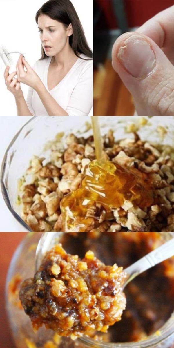 Вы должны съесть это, если у вас выпадают волосы, ломкие ногти и нет нормального сна