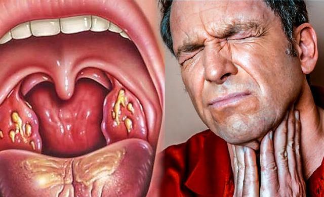 Как избавиться от ангины и боли в горле всего за несколько часов!