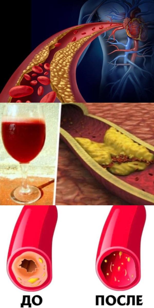 Чистим сосуды и кровь рецепт семь стаканов