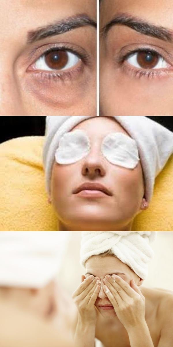 У вас мешки под глазами Используйте пищевую соду, эффект НЕВЕРОЯТНЫЙ!