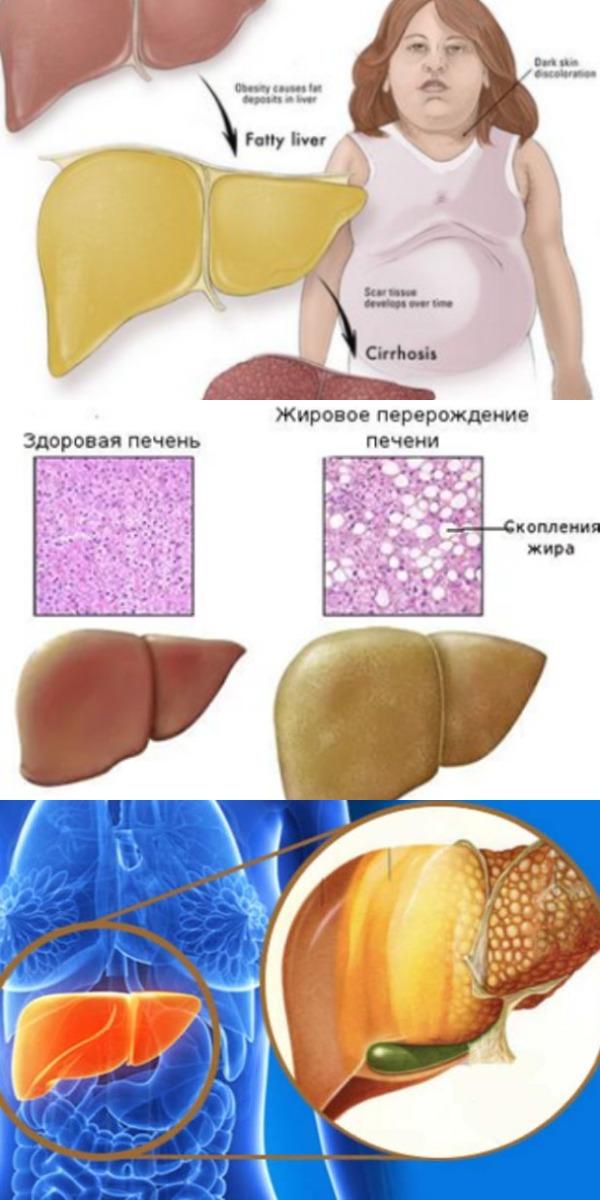 Избавьтесь от жировой болезни печени и похудейте с помощью этого 3-х дневного лечения