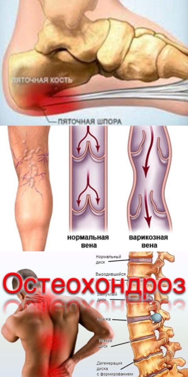После 1 процедуры Вы избавитесь от шпор, варикоза и остеохондроза