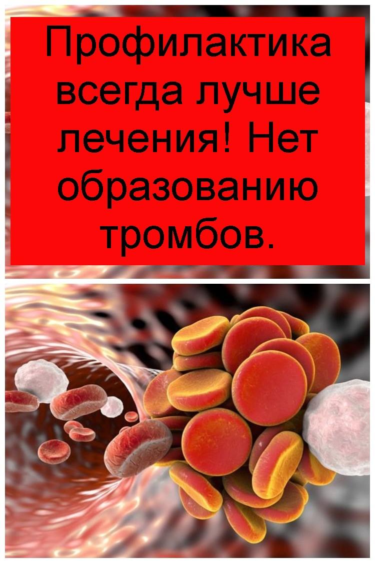 Профилактика всегда лучше лечения! Нет образованию тромбов 4