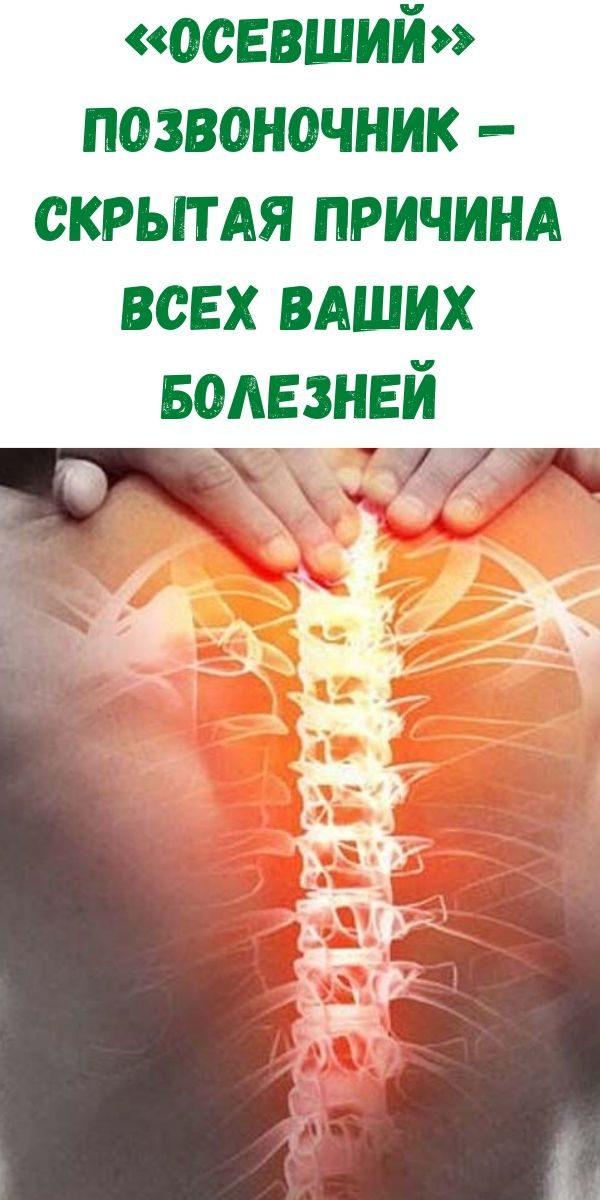 osevshiy-pozvonochnik-skrytaya-prichina-vseh-vashih-bolezney
