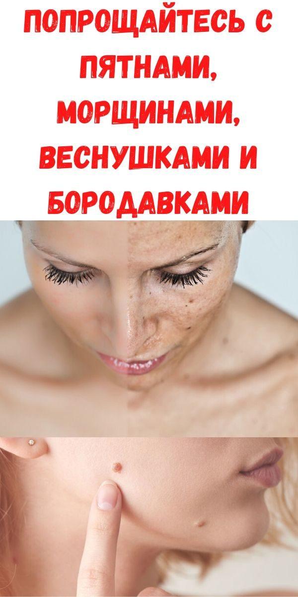 poproschaytes-s-pyatnami-morschinami-vesnushkami-i-borodavkami
