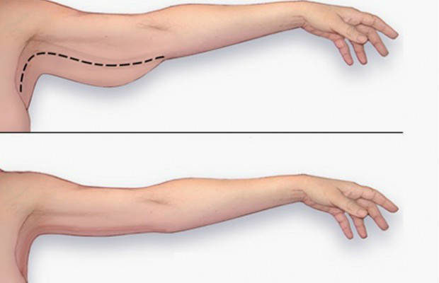 prevent-flabby-arms