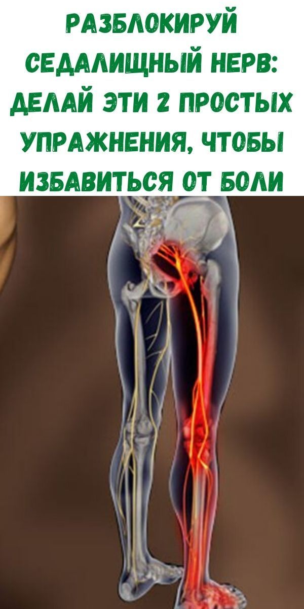 razblokiruy-sedalischnyy-nerv_-delay-eti-2-prostyh-uprazhneniya-chtoby-izbavitsya-ot-boli