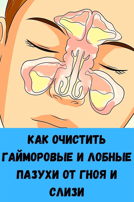 ak-ochictit-gaymopovye-i-lobnye-pazuhi-ot-gnoya-i-clizi