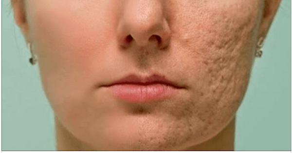 rub-this-on-any-scar