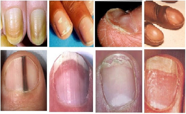 what-fingernail-abnormalities-say-about-your-health